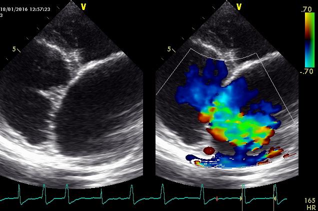 Farbdoppler-Untersuchung / Herzklappenfehler